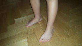 Podólogo infantil en Madrid.